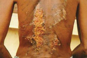 Un homme victime de torture dans le département congolais du Pool. © OCDH